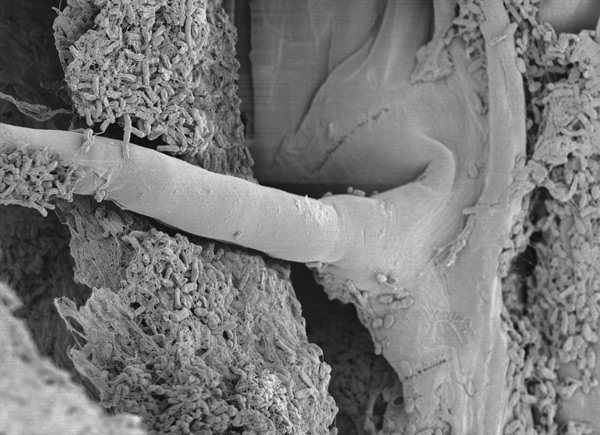 rice lateral root