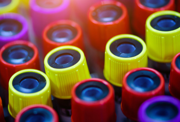 Colorful test tubes with blood in laboratory.