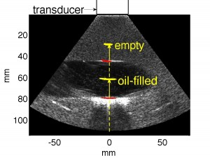 This shows an ultrasound image of a cavity filled with olive oil. Dashed and solid vertical lines indicate the beam path through material with relative stopping powers near 0 and 1, respectively. Bragg peaks from both empty and filled cavities are overlaid in yellow. Overlaid in red are estimates of entrance point of beam into the material with high stopping power, in agreement with the ultrasound image.