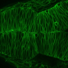 Neural-Epithelial-Cells