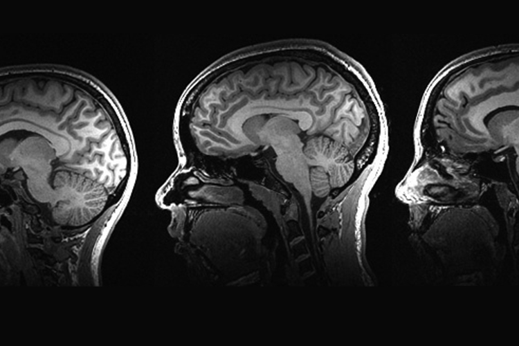 Three brain scans
