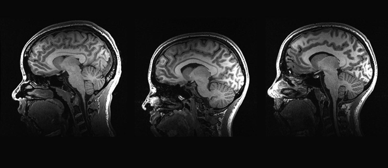 Three brain scans
