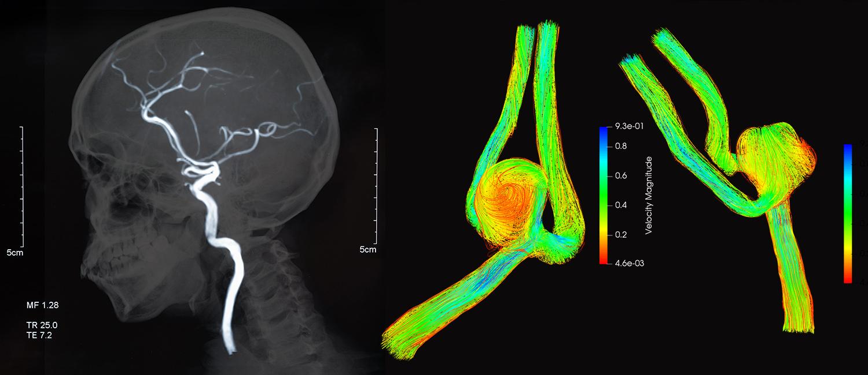 Graphic of brain aneurysm