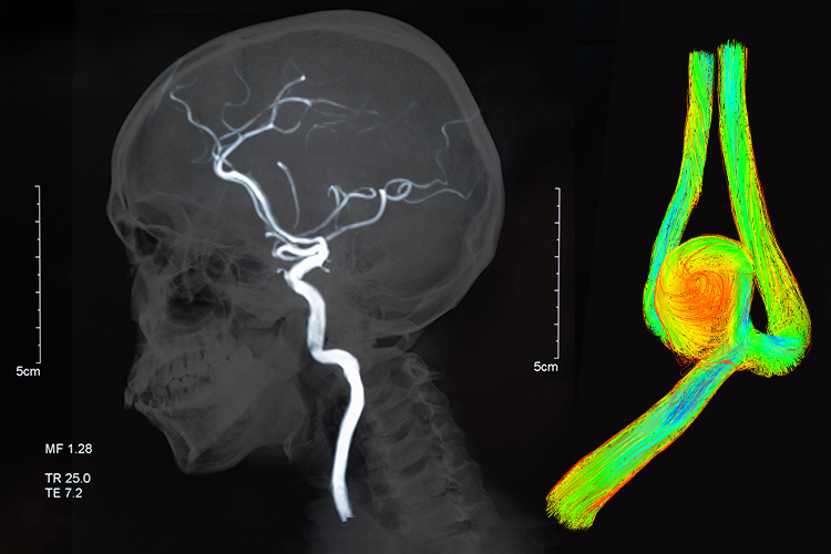 Graphic of brian aneurysm